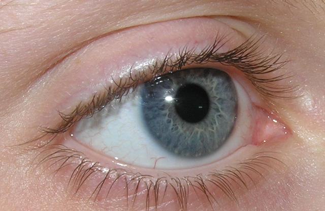 Genetic basis of lazy eyesuncovered