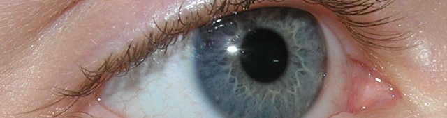 Genetic basis of lazy eyes uncovered